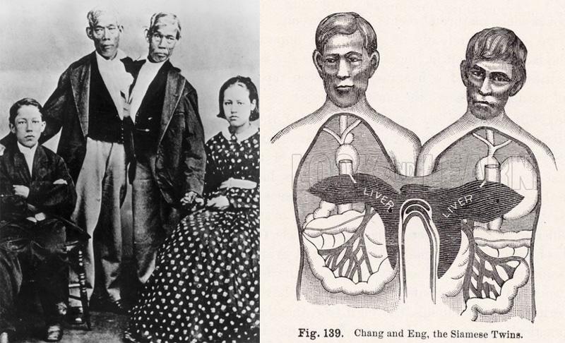 Сиамские близнецы Чанг и Энг Банкеры